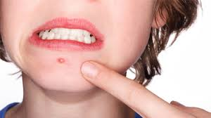 Get Rid Of Blind Pimple How To Get Rid Of Blind Pimples U2013 Causes Prevention And Treatment