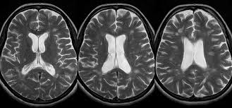 Axial Mri Brain Anatomy Dr Balaji Anvekar U0027s Neuroradiology Cases Multiple Sclerosis