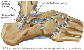 Talus Ligaments Chronic Lateral Ankle Instability Musculoskeletal Key