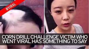 Challenge Victim Corn Drill Challenge Left With Bald Patch Hits Back