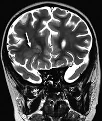 Cortical Blindness May Result From The Destruction Of Spectrum Of Clinical And Associated Mr Imaging Findings In