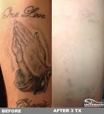 new tattoo removal system beauty pinterest tattoo removal