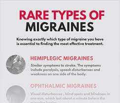 Symtoms Of Blindness Basilar Migraines Archives Migraine Buddy