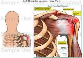 Human Shoulder Diagram Left Shoulder Injuries Front View Medical Illustration Human