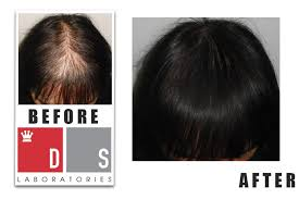ds hair extensions hair loss in women fort myers hair extensions