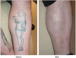 tattoo removal laser skin care santa rosa artemedica