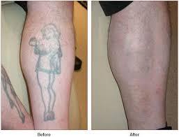 tattoo removal laser skin care santa rosa artemedica