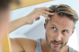 percentae of men with thinning hair at 60 hair loss in men everything you need to know scalp med