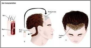 how thick is 1000 hair graft hair transplantation procedure blood pain complications