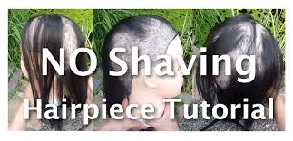 hair style for trichotillomania how to install hairpiece without shaving trichotillomania bald