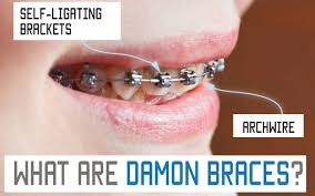 nickel free braces damon braces or traditional metal orthodontic braces