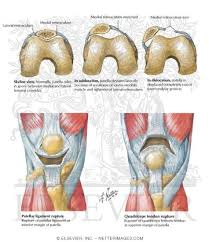 Lateral Patellar Ligament Of The Leg And Knee Subluxation And Dislocation Of Patella