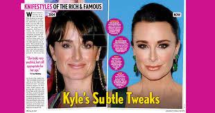 kyle richards needs to cut her hair knife styles skinney medspa press png