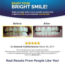 How To Whiten Kids Teeth Amazon Com Premium Teeth Whitening Kit For Home Use Made In
