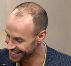 paddy mcguinness hair implants dancing on ice 2011 jason gardiner s 12k hair transplant he s