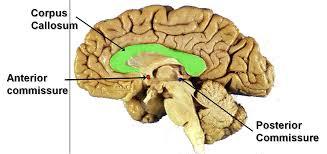 Gross Brain Anatomy Anterior Commissure In Brain Human Anatomy