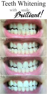 pro light dental whitening system reviews smile brilliant professional teeth whitening review giveaway