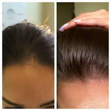 hairr styles for woman with alopica scalp micropigmentation for women scalp aesthetics