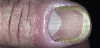 nail diseases paronychia pseudomas infection white spots or