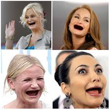 Teeth Meme - actresses without teeth image gallery know your meme