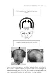 how to beat hair loss by dr antonio armani