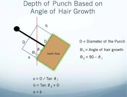 an analysis of follicular punches mechanics and dynamics in