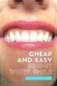 best 25 teeth bleaching cost ideas on pinterest dog flea