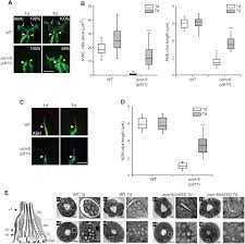 plos genetics structural and functional recovery of sensory cilia
