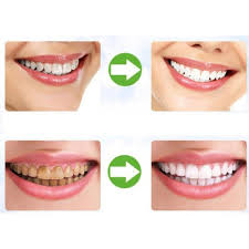 Cost Of Teeth Whitening Compare Prices On Charcoal Teeth Whitening Online Shopping Buy