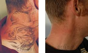 removed tattoo before and after tattoo collections