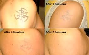 clear out ink laser tattoo removal prices photos u0026 reviews