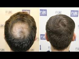 how thick is 1000 hair graft fue hair transplant 1850 fue grafts in crown vertex by dr couto