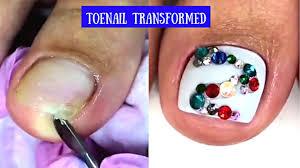 toenails cleaning treatment amazing toenail art tutorial best
