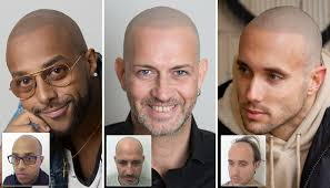 pics of scalp micropigmentation on people with long hair scalp micropigmentation client reviews skalp com