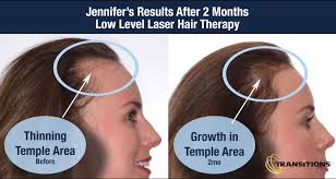 hair loss treatment what is hair loss what are the factors that