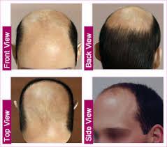 hair transplant costs in the philippines hair transplant cost in dar es salaam mwanza zanzibar tanzania