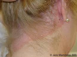 light treatment for scalp psoriasis psoriasis american osteopathic college of dermatology aocd
