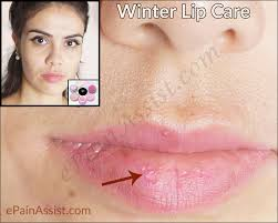 Chapped Lips Meme - lip care natural home remedies for chapped lips