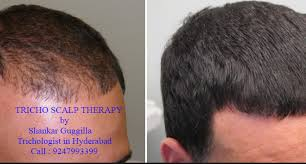 hair bonding follicles is the best scalp micro pigmentation fur shankar