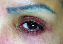 permanent makeup gone bad naturalook institute of permanent