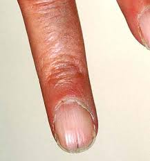 nail disorders and abnormalities medical information patient