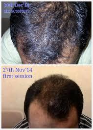 bandage hair shaped pattern baldness 21 best scalp treatment images on pinterest scalp treatments
