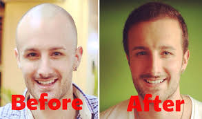 hair transplant america how much does a hair transplant cost answered youtube