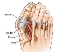 Foot Ligament Anatomy Osteotomy And Ligament Or Tendon Repair Bunion Surgery