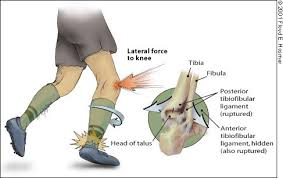 Lateral Collateral Ligament Ankle Management Of Ankle Sprains American Family Physician