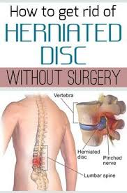 inversion table for herniated disc in neck how to heal a herniated disc exercises surgery and remedies