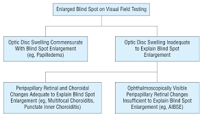 Finding Your Blind Spot In Your Eye Acute Idiopathic Blind Spot Enlargement Syndrome Dermatology