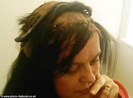 women hair cut to cover bald spot on top of head mother bald after spending 30 years pulling out hair due to rare