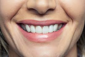 Pictures Of Oral Cancer On Roof Of Mouth by Dental Problems Body Diseases Teeth Reveal Reader U0027s Digest
