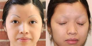 permanent makeup removal laser before and after makeup vidalondon